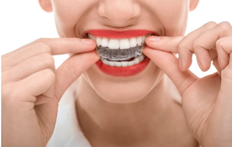 How to Clean Your Invisalign Aligners
