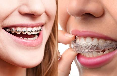 Traditional Braces vs. Invisalign—Which One is Right for You?